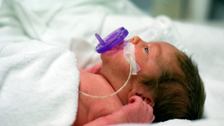 Premature-Baby-Born-Hospital-Bed